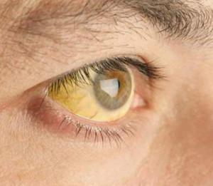 पीलिया रोग किसी भी अवस्था के व्यक्ति को हो सकता है।