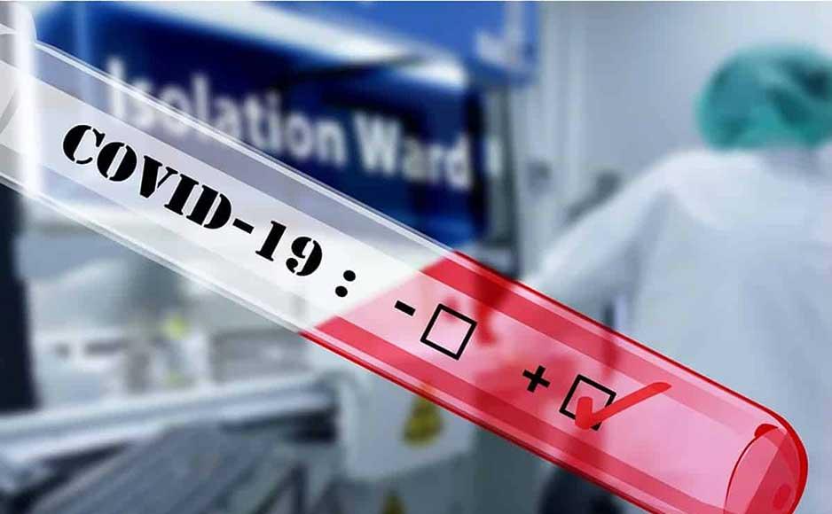 प्रदेश में कोरोना संक्रमितों का आंकड़ा 1048 जबकि 715 मरीज हुआ स्वस्थ