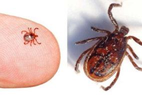 स्क्रब टायफस के लक्षण : तेज बुखार, सिर दर्द, लाल आंखे, निमोनिया व दिमागी बुखार